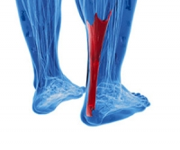Defining an Achilles Tendon Rupture